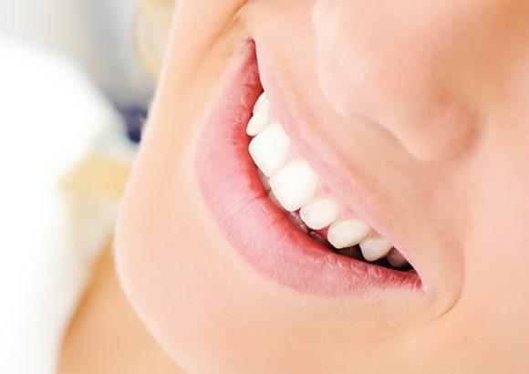 Transplantes dentales